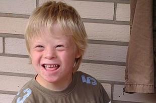 Photo of Predrasude i istine o sindromu Down