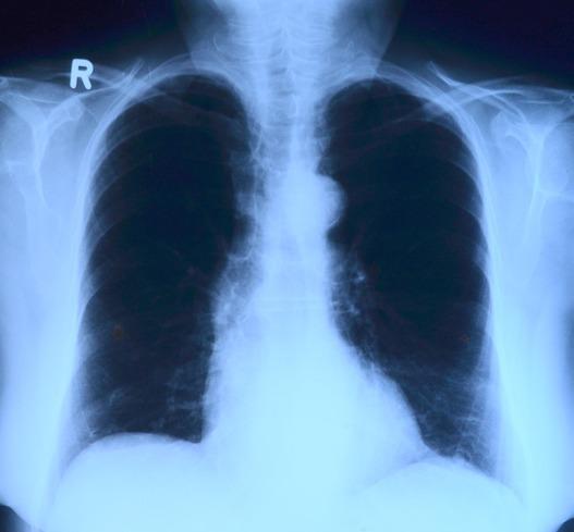 Photo of Otkriven je lijek za karcinom pluća