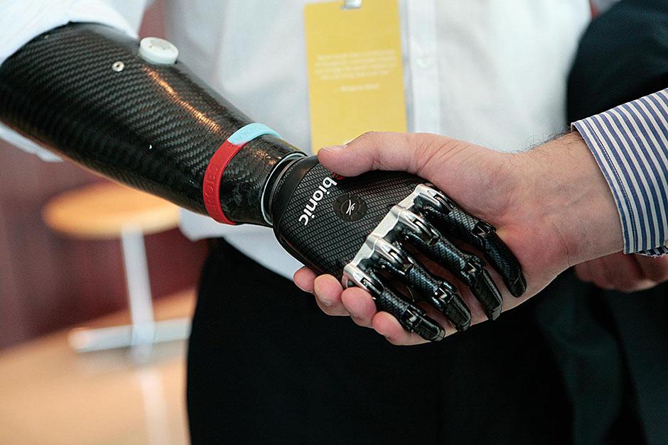 Photo of Ugrađena proteza preko koje je moguć gotovo prirodan osjet