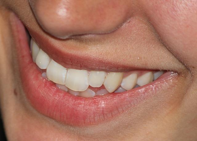 Photo of Kako spriječiti nastanak mrlja na zubima