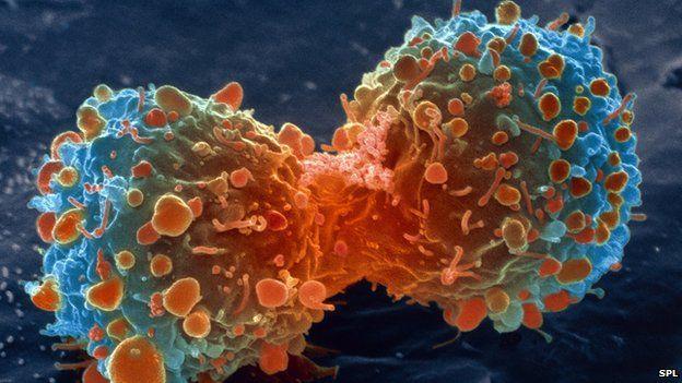 """Photo of Rak: rezultat """"loše sreće"""" ili načina života?"""