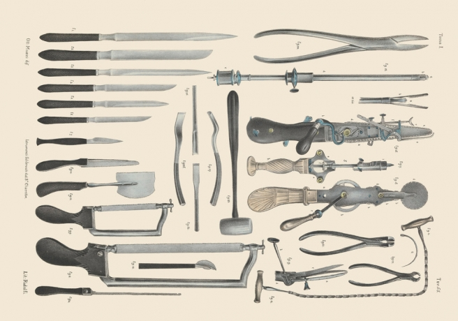 Photo of Kako su izgledale operacije u 19. stoljeću?
