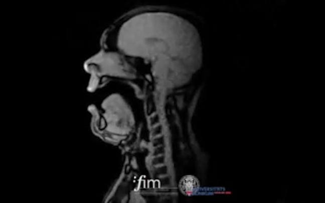 Photo of Fascinantni video pjevača snimljen rengenom