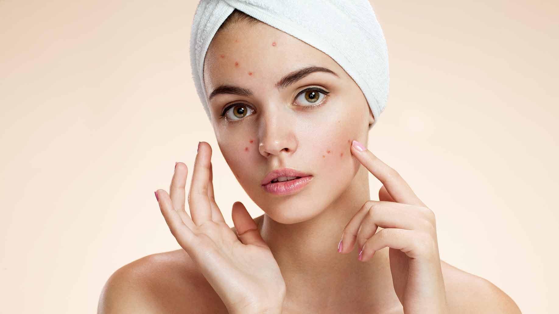 Photo of Što je to i kako spriječiti 'šećerno lice'