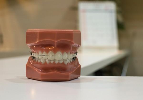 Photo of Začin koji ima svako kućanstvo a pomoći će vam izbijeliti zube