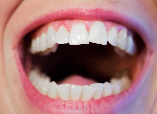 Photo of Narodni lijekovi koji ublažavaju zubobolju