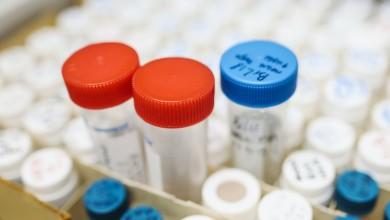 Photo of Kreću velika testiranja u Hrvatskoj, cilj je otkriti koliko ljudi je razvilo imunitet