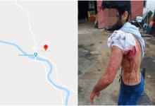 Photo of KRVAVO JUTRO Migrant napadnut nožem u Kosinju! Ranio ga je netko iz grupe od pedesetak Pakistanaca